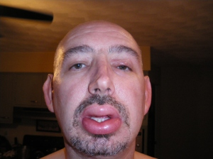big lips